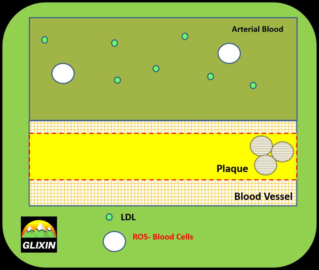 Low BLOS stabilizes plaque.