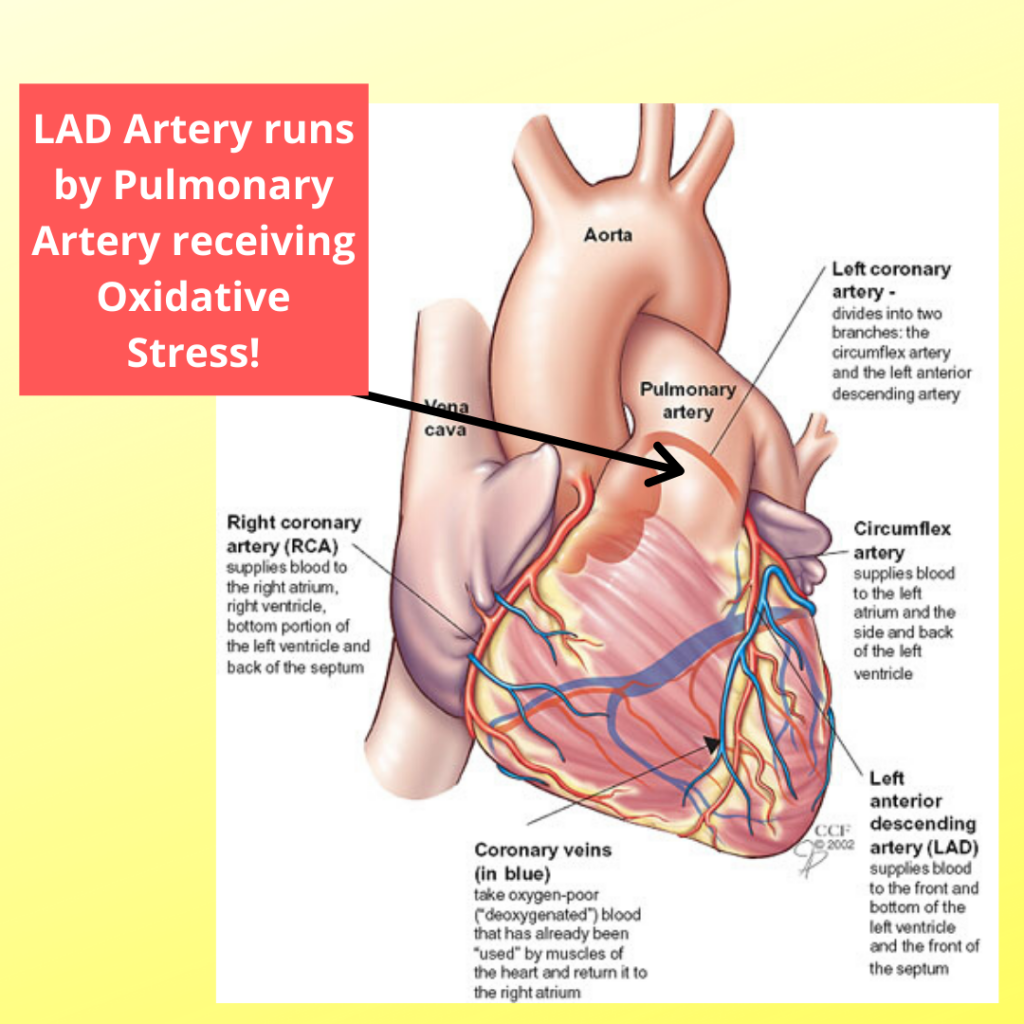 LAD Artery vulnerable to Oxidative Stress diffusing from Portal Artery